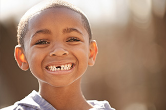 Young boy with missing teeth.